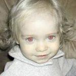 赤い目を持った人たちはアルビノとして実在している